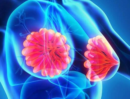 mastitis sintomas